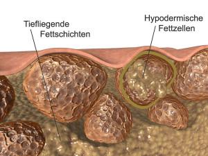 Сечение кожи с целлюлитом.